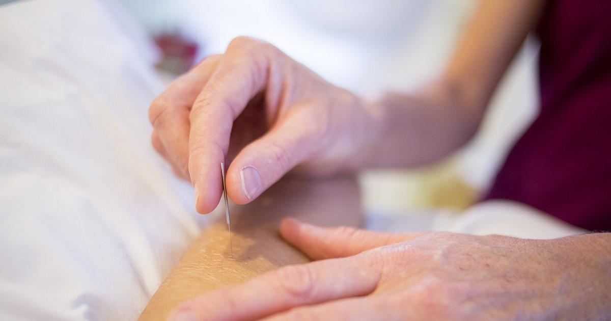Acupuntura é uma das mais famosas terapias holísticas